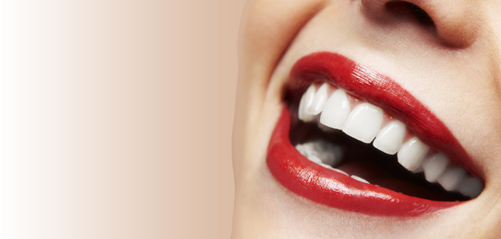 Blancorexia, la obsesión por los dientes blancos