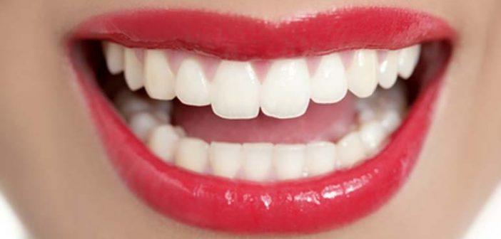5 consejos para tener unos dientes perfectos