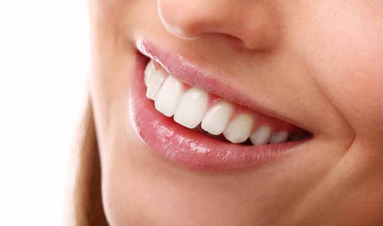 7 trucos para presumir de sonrisa perfecta