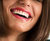Implantes dentales para volver a lucir una bonita sonrisa