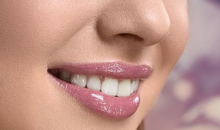 Implantes dentales para volver a lucir una bonita sonrisa - ¡Siéntete Guapa!