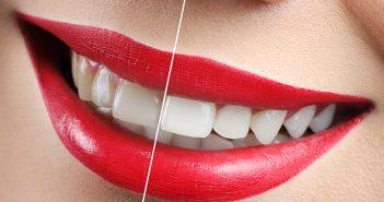 Cómo elegir las carillas dentales perfectas - ¡Siéntete Guapa!