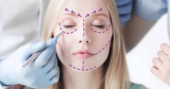 ¿En qué consiste la liposucción facial? - Siéntete Guapa